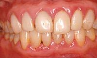 歯周病になった歯肉