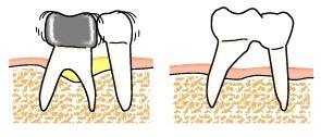 根面を磨ける、プラークが付きづらい環境の確立